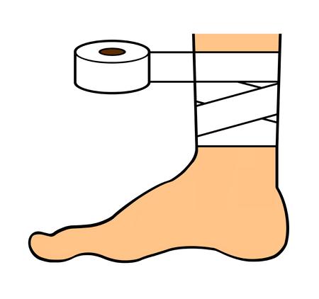 Injury of a leg