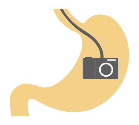 An image of a gastrocamera. Stock Photo