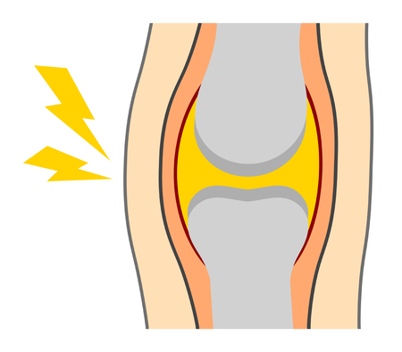 The pain has occurred to a knee joint. Banco de Imagens