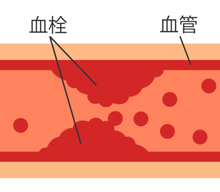 The thrombus which occurred in the blood vessel Stock Photo