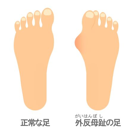 Foot with hallux valgus onset.