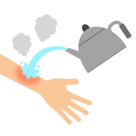The arm is burned with boiling water.