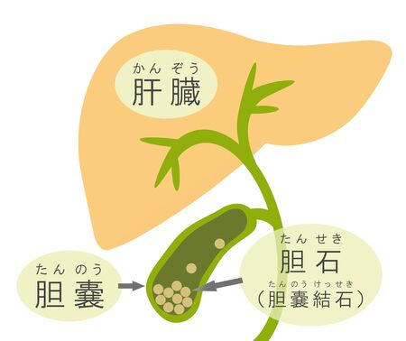 Mechanism of a gallbladder calculus.