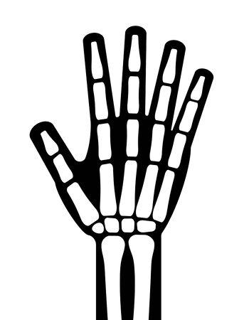 Bone of a hand