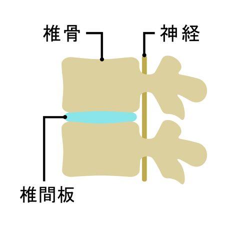 Mechanism of an intervertebral disk. Banco de Imagens