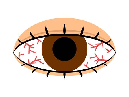 Congestion of an eye