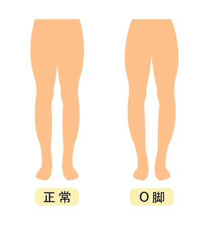 Bowlegs and comparison of a normal foot. Banco de Imagens
