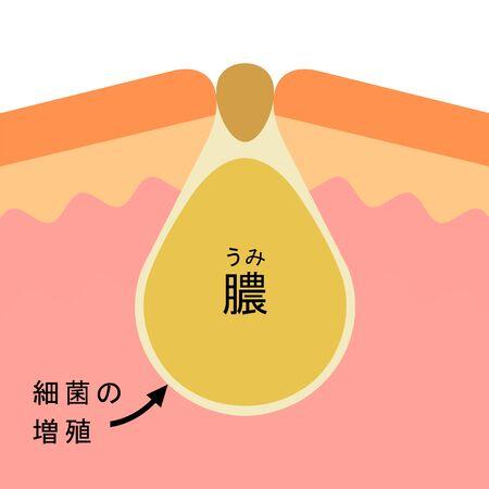 Cross section of acne Stock fotó