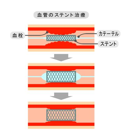 Method of vascular stent treatment.