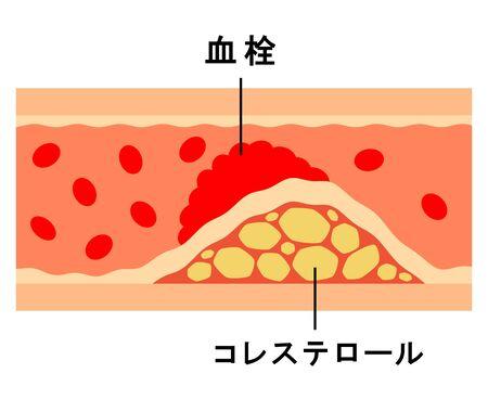 Diagrama del workalis.