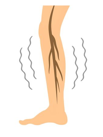 Neuropathy of the legs