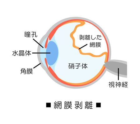 The detachment of the retina Фото со стока