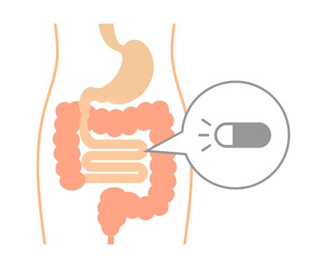 Check of a gut using a capsule.