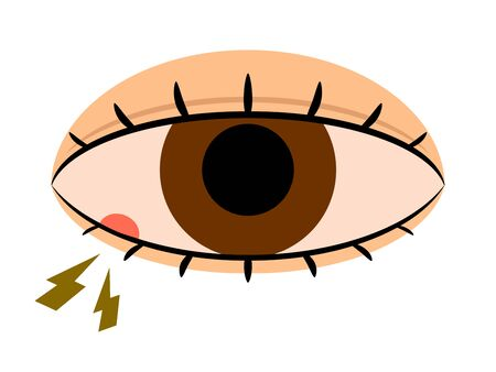 Swelling of the lower eyelid