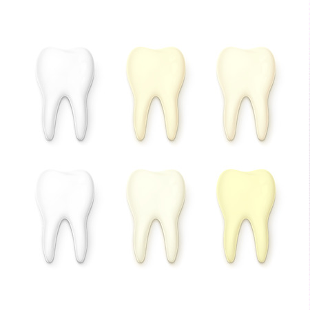 whitening: Set of 6 teeth realistic isolated on white background . White tooth for dental services. Yellow teeth . Tooth with tooth decay. Molar. Teeth whitening . Tooth for a banner . Sick tooth.