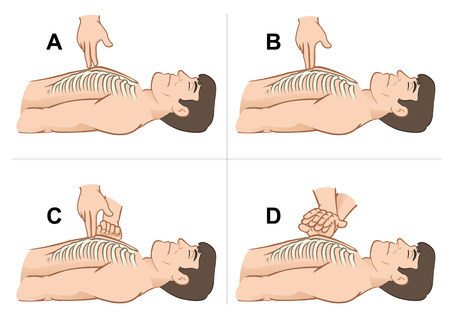 cartoon accident: First Aid resuscitation (CPR), massage compression of the rib cage chest resuscitation. Ideal for training materials, catalogs and institutional