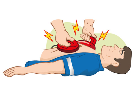 at first: Illustration First Aid resuscitation (CPR) using defibrillator to cardiac arrest. Ideal for training materials, catalogs and institutional