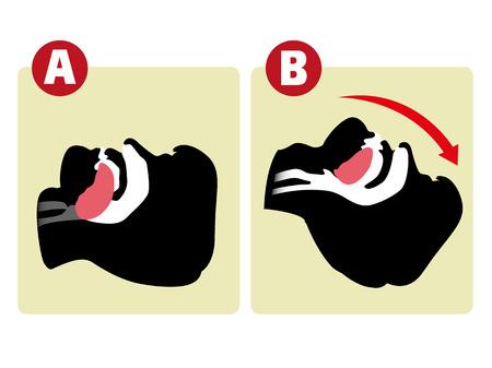 persona respirando: Reanimaci�n de primeros auxilios (CPR), respiraci�n despejar, de boca a boca. Para la reanimaci�n. Ideal para materiales de formaci�n, cat�logos y institucional