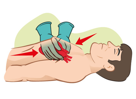 First Aid cardiac resuscitation (CPR), open heart massage . For resuscitation. Ideal for training materials, catalogs and institutional Vector