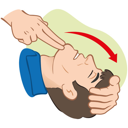 cartoon accident: First Aid resuscitation (CPR), clearing breathing, positioning. For resuscitation. Ideal for training materials, catalogs and institutional Illustration