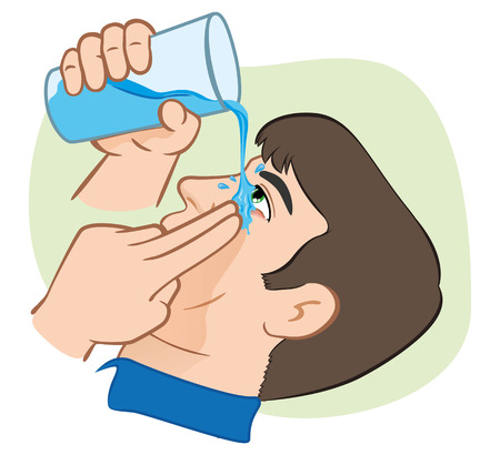 first aid: Illustration First Aid flush eyes with water. ideal for training materials, catalogs and institutional