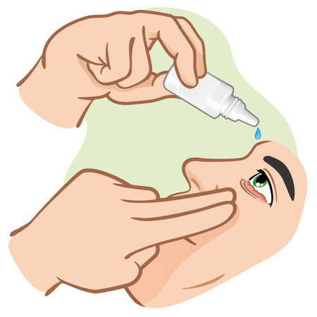 Eye drops Medicament illustration to ping us angry eyes. ideal for training materials, catalogs and institutional Stock Illustratie