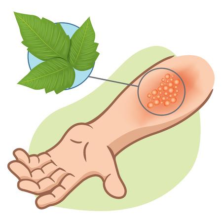 sarpullido: Ilustración que representa el brazo de primeros auxilios con alergias y erupciones alérgicas debido a la intoxicación por hiedra venenosa