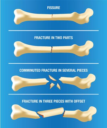 huesos humanos: Anatomía diversas fracturas óseas del esqueleto. Ideal para materiales médicos e institucionales Vectores