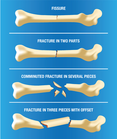 nursing aid: Anatomy various skeletal bone fractures. Ideal for medical and institutional materials