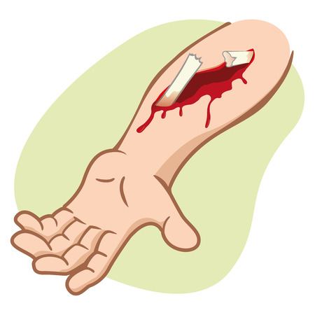 Illustration of a human arm with a compound fracture showing the broken bone. Ideal for catalogs newsletters and first aid guides Ilustração