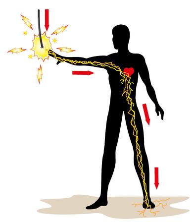 Ilustración que representa la persona que recibe una descarga eléctrica en la red de alta tensión debido a un accidente en el trabajo. Ideal para boletines catálogos y guías de primeros auxilios Logos