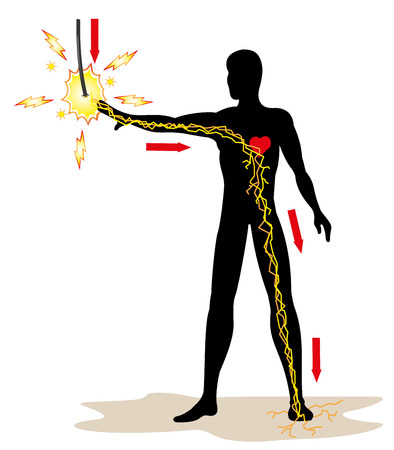 accidente trabajo: Ilustración que representa la persona que recibe una descarga eléctrica en la red de alta tensión debido a un accidente en el trabajo. Ideal para boletines catálogos y guías de primeros auxilios Vectores