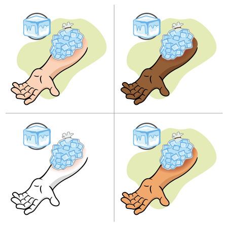 Illustratie die EHBO met ijs kompres op de gewonde arm Vector Illustratie