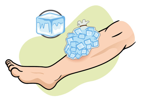 dressing: Illustration representing First Aid with ice compress on the injured leg