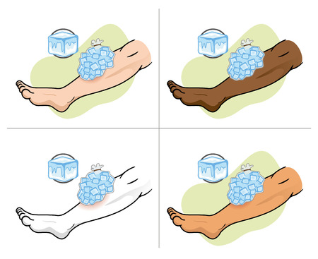 urgently: Illustration representing First Aid with ice compress on the injured leg
