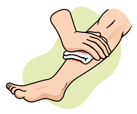 infirmary: Illustration of a leg receiving first aid compression leg injury. Ideal for medical supplies educational and institutional Illustration