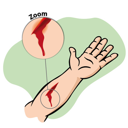 Illustration First Aid injured arm with bleeding gash. Ideal for catalogs newsletters and first aid guides