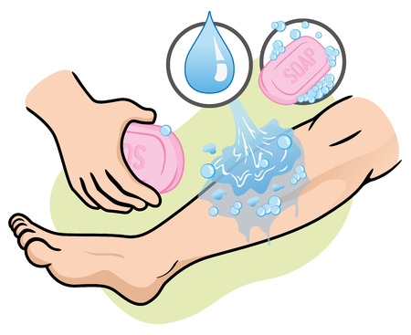 Illustration of a leg receiving first aid injured wash with soap and water. Ideal for medical supplies and educational institutional.