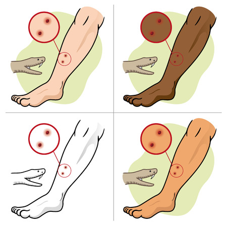 african descent: Illustration First Aid person chopped leg snake, etinias. Ideal for catalogs, informative and medical guides