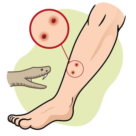 serpiente caricatura: Ilustración de primeros auxilios persona picada de serpiente pierna. Ideal para catálogos, informativos y guías médicas Vectores