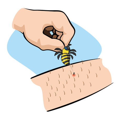 Illustration First Aid person bee sting arm. Ideal for catalogs, informative and medical guides Stock Illustratie