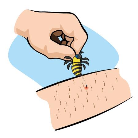 Illustration Erste-Hilfe-Person Bienenstich Arm. Ideal für Kataloge, informative und medizinische Führungen Vektorgrafik