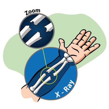 huesos: Ilustración de primeros auxilios x brazo persona ray, hueso fracturado. Ideal para catálogos, informativos y guías médicas