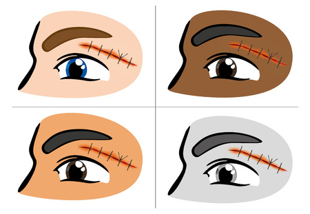 emergency room: Illustration of a receiving first aid, injury or cut and sutured face Illustration