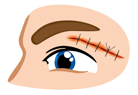 tip style design: Illustration of a receiving first aid, injury or cut and sutured face Illustration