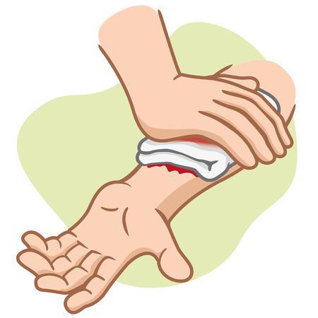 accidente trabajo: Ilustraci�n de un brazo que recibe primer brazo de compresi�n lesi�n ayuda. Ideal para suministros m�dicos educativa e institucional
