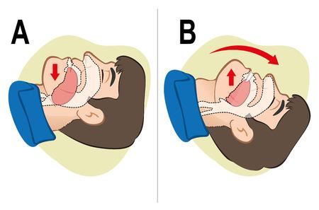 Première CPR de l'aide de réanimation respiratoire compensation positionnement. Pour la réanimation. Idéal pour la formation des catalogues des matériaux et institutionnelle Banque d'images - 41449730