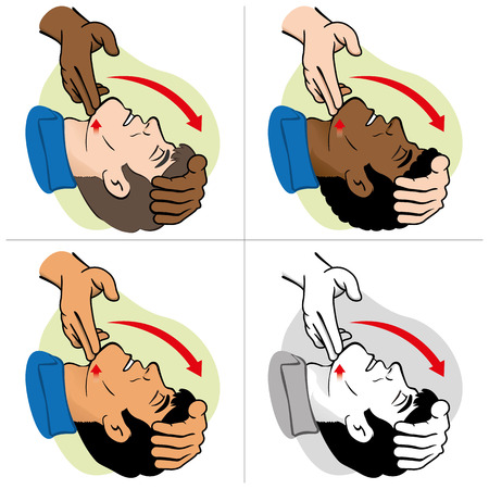 head injury: First Aid CPR resuscitation clearing breathing positioning etnais. For resuscitation. Ideal for training materials catalogs and institutional