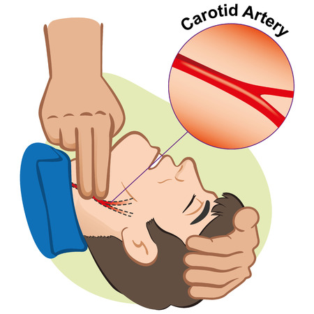 Illustration First Aid person measuring pulse through the carotid artery. Ideal for catalogs and informative medical guides  イラスト・ベクター素材