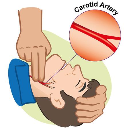 Illustratie EHBO persoon meten puls door de halsslagader. Ideaal voor catalogi en informatieve medische gidsen